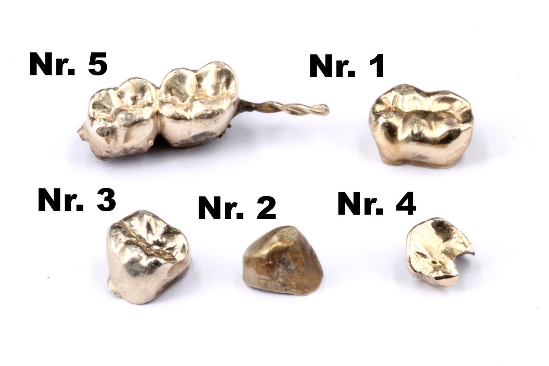 Gold Zahnkrone Gewicht