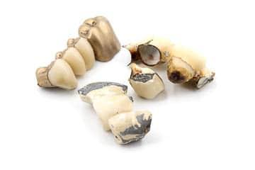 Dentalgold Ankauf mit Zahn und Keramik