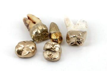 Goldzahn verkaufen