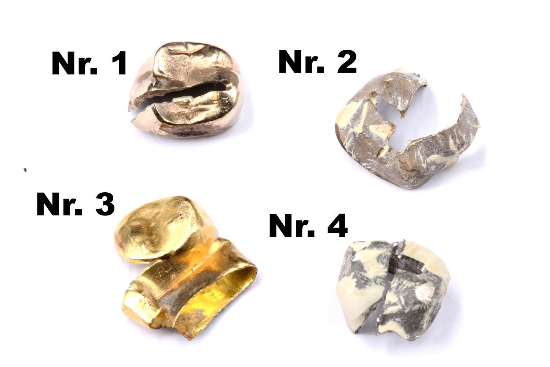 Goldzahn Gewicht