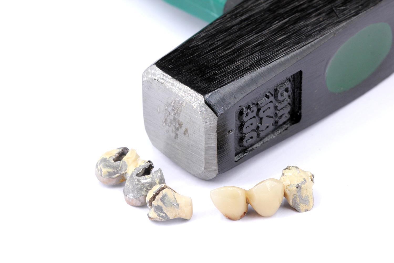 Wie entferne ich Zähne vom Zahngold