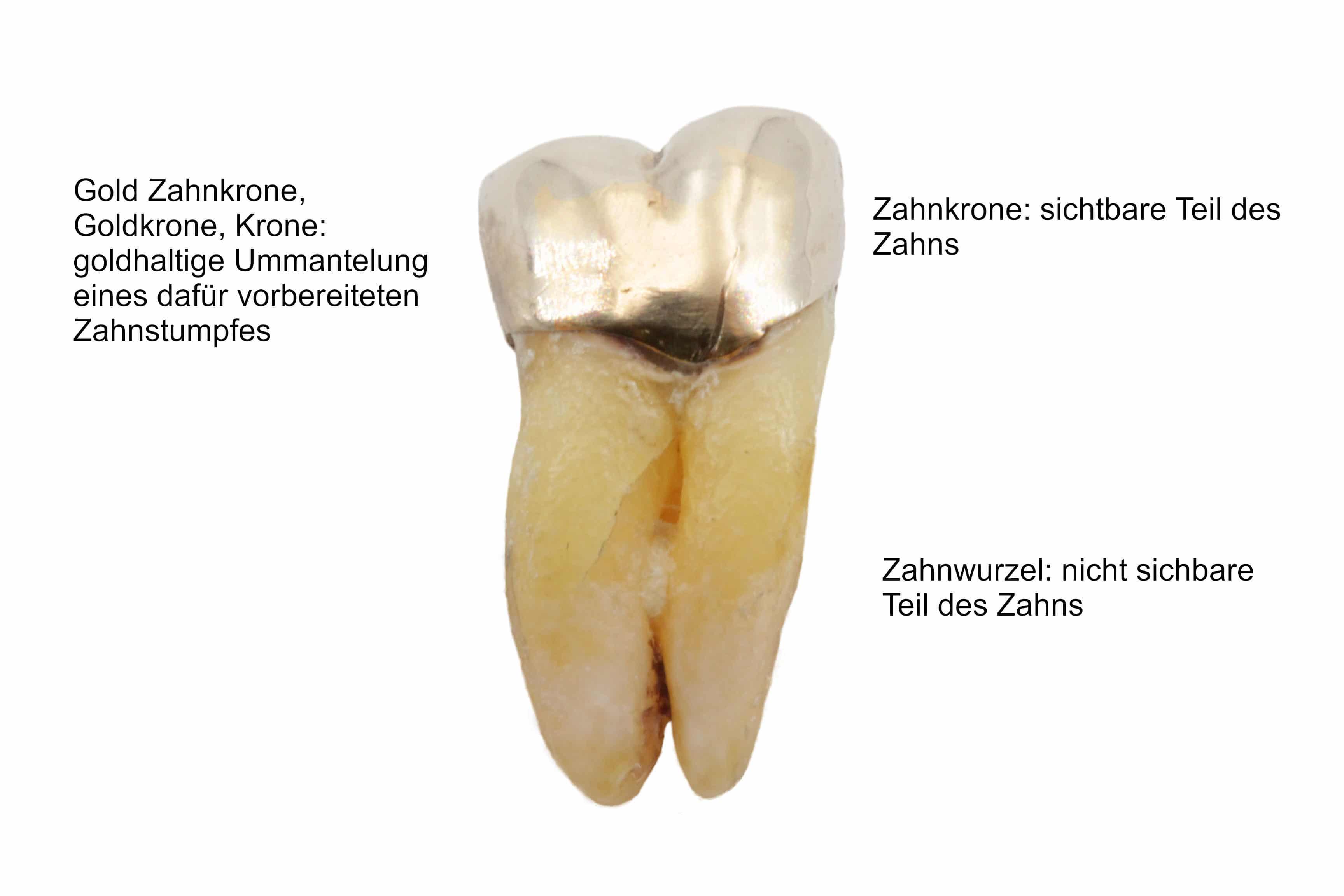 Zahn Hintergrund weiß mit Beschriftung